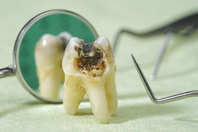 Sakit Gigi Berlubang, Ini Penanganannya - Alodokter