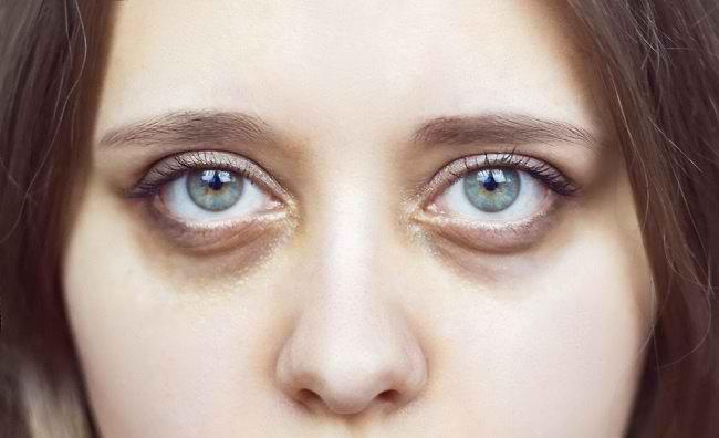 11+ Cara mengatasi mata kering dengan bahan alami aman dan sehat trends